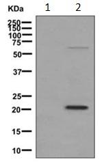 Western blot - Anti-MAGP2 [EPCSUR1] antibody (ab171737)