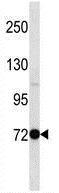 Western blot - Anti-PAK5 antibody (ab171761)