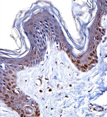 Immunohistochemistry (Formalin/PFA-fixed paraffin-embedded sections) - Anti-HMG14 antibody - N-terminal (ab171762)