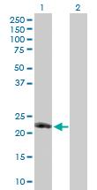 Western blot - Anti-CD153 antibody (ab171779)