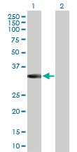 Western blot - Anti-MPPED2 antibody (ab171781)