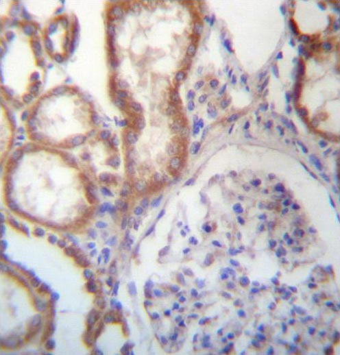 Immunohistochemistry (Formalin/PFA-fixed paraffin-embedded sections) - Anti-ARMC4  antibody (ab171842)