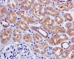 Immunohistochemistry (Formalin/PFA-fixed paraffin-embedded sections) -  (ab171939)