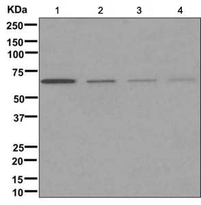 Western blot - Anti-ZP1 [EPR10827] antibody (ab171954)