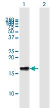 Western blot - Anti-LST1 antibody (ab172244)
