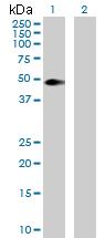 Western blot - Anti-SPHK1 antibody (ab172290)