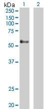 Western blot - Anti-GPR56 antibody (ab172361)