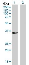 Western blot - Anti-CRSP8 antibody (ab172363)