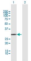 Western blot - Anti-BPNT1 antibody (ab172551)
