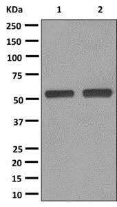 Western blot - Anti-UGT1A8 [EPR11949] antibody (ab172624)