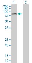 Western blot - Anti-RIOK2 antibody (ab172717)
