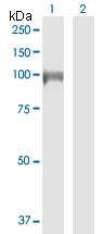 Western blot - Anti-DIAPH3  antibody (ab172722)