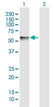 Western blot - Anti-FAM134B  antibody (ab172791)