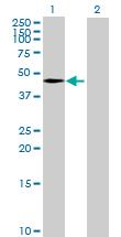 Western blot - Anti-TIPIN antibody (ab172792)