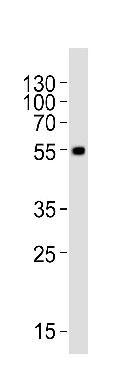 Western blot - Anti-MLKL antibody - C-terminal (ab172868)