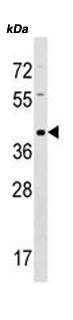 Western blot - Anti-TAS2R9 antibody (ab172932)
