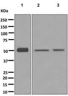 Western blot - Anti-UGT2B4 [EPR11677] antibody (ab173580)