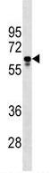 Western blot - Anti-PGS1 antibody (ab173696)