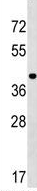 Western blot - Anti-PPIL5 antibody (ab173792)