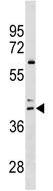 Western blot - Anti-CCR4 antibody (ab173799)