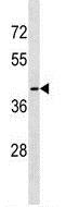 Western blot - Anti-OR56B1 antibody - N-terminal (ab173932)