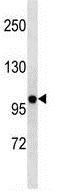 Western blot - Anti-Kv2.2 antibody - N-terminal (ab174238)