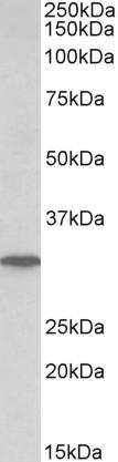 Western blot - Anti-Nucleoside phosphorylase antibody (ab174763)