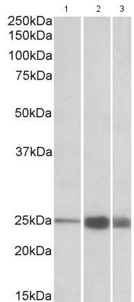 Western blot - Anti-Troponin I fast skeletal muscle antibody (ab174765)
