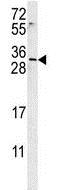 Western blot - Anti-EMX2 antibody (ab174897)