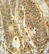 Immunohistochemistry (Formalin/PFA-fixed paraffin-embedded sections) - Anti-Advillin antibody - N-terminal (ab175126)