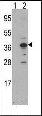 Western blot - Anti-EMAP II antibody - C-terminal (ab175528)