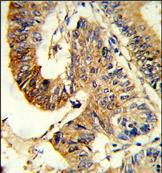 Immunohistochemistry (Formalin/PFA-fixed paraffin-embedded sections) - Anti-ASS1 antibody (ab175607)