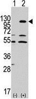 Western blot - Anti-Eph receptor A7 antibody (ab176102)