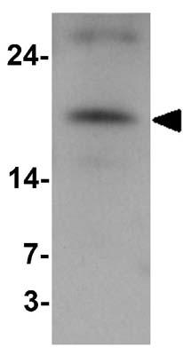 Western blot - Anti-VKORC1 antibody - N-terminal (ab176118)