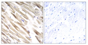 Immunohistochemistry (Formalin/PFA-fixed paraffin-embedded sections) - Anti-MRPL33 antibody (ab176126)