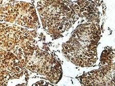 Immunohistochemistry (Formalin/PFA-fixed paraffin-embedded sections) - Anti-GALNTL5 antibody (ab176772)