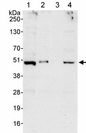 Western blot - Anti-PAK1 interacting protein 1 antibody (ab176813)