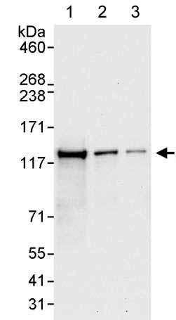 Western blot - Anti-DHX16 antibody (ab176819)