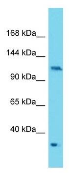 Western blot - Anti-PKN2 antibody (ab177322)