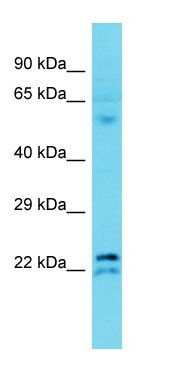 Western blot - Anti-TMEM182 antibody - N-terminal (ab177360)
