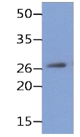 Western blot - Anti-REXO2 [AT59D9] antibody (ab177527)
