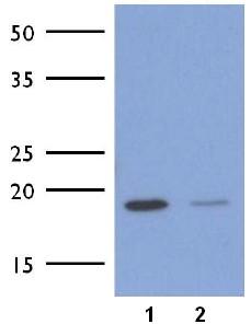 Western blot - Anti-ICT1 [AT1E9] antibody (ab177528)
