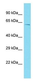 Western blot - Anti-CCDC64B antibody - N-terminal (ab177564)