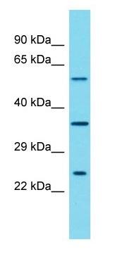 Western blot - Anti-Shoc2 / Sur8 antibody - N-terminal (ab177927)