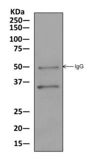 Immunoprecipitation - Anti-PPA2 [EPR13087(B)] antibody (ab177935)