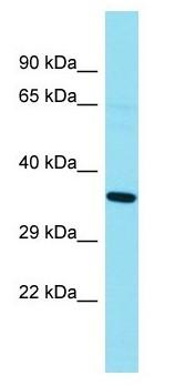 Western blot - Anti-GKAP1 antibody (ab178025)