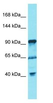 Western blot - Anti-FGD5 antibody (ab178030)
