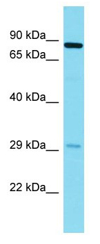 Western blot - Anti-KIAA1486 antibody - N-terminal (ab178335)