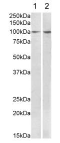 Western blot - Anti-BCAR1 antibody (ab178524)