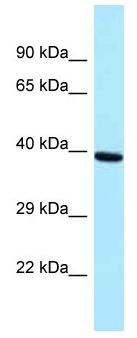 Western blot - Anti-PRP18 homolog antibody (ab178819)